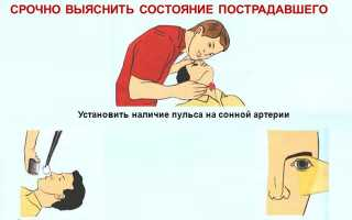 Как определить наличие пульса на сонной артерии пострадавшего